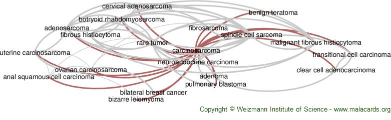 Diseases related to Carcinosarcoma
