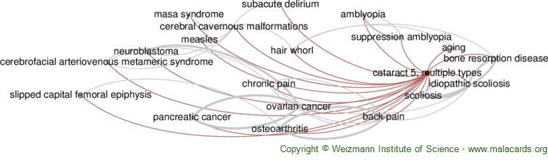 Diseases related to Cataract 5, Multiple Types
