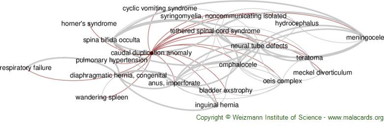 Diseases related to Caudal Duplication Anomaly