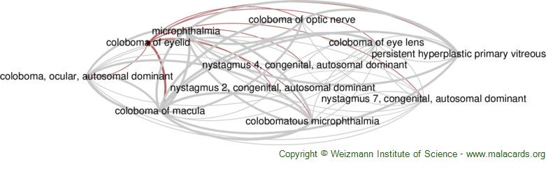 Diseases related to Coloboma of Eyelid