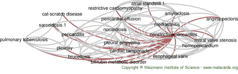 Diseases related to Constrictive Pericarditis