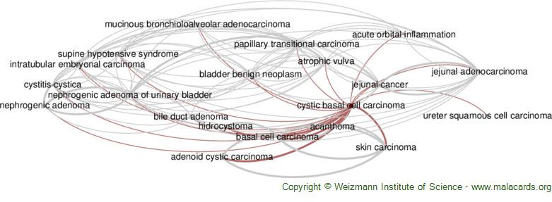 Diseases related to Cystic Basal Cell Carcinoma