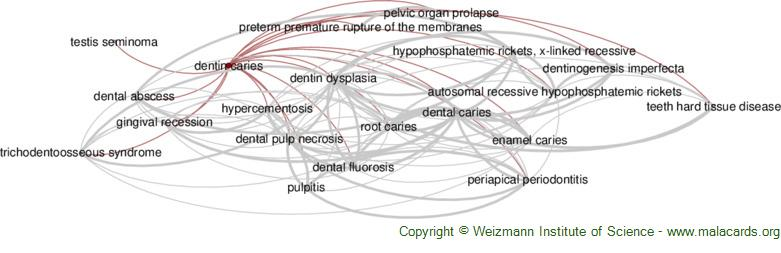 Diseases related to Dentin Caries