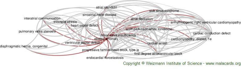 Diseases related to Ebstein Anomaly