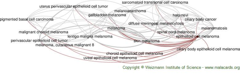Diseases related to Epithelioid Cell Melanoma