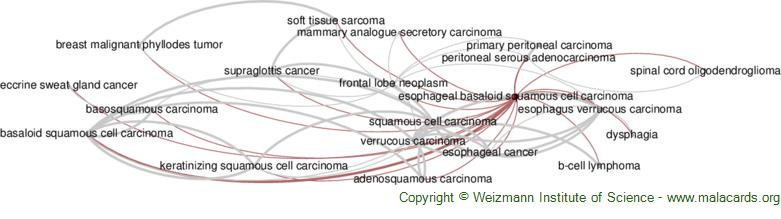 Diseases related to Esophageal Basaloid Squamous Cell Carcinoma