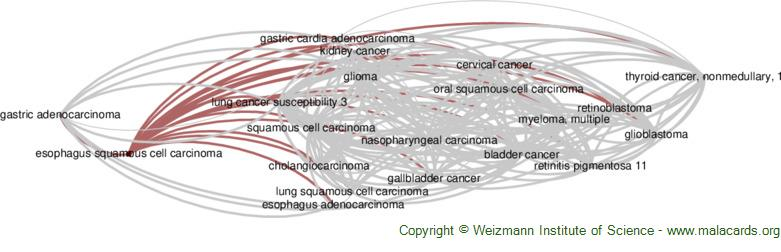 Diseases related to Esophagus Squamous Cell Carcinoma