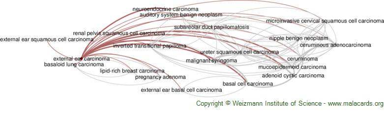 Diseases related to External Ear Carcinoma