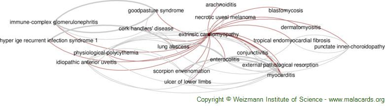 Diseases related to Extrinsic Cardiomyopathy