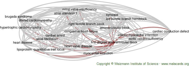 Diseases related to First-Degree Atrioventricular Block