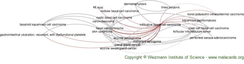 Diseases related to Infiltrative Basal Cell Carcinoma