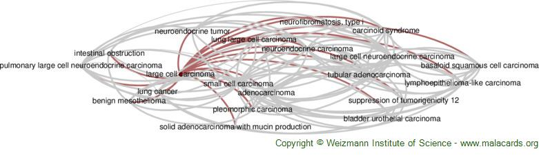 Diseases related to Large Cell Carcinoma