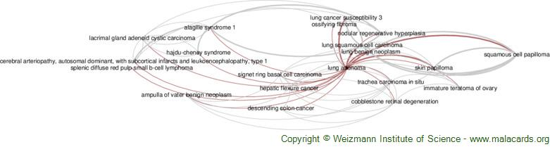 Diseases related to Lung Adenoma