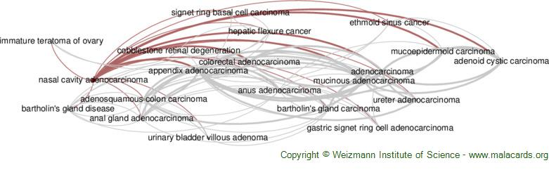 Diseases related to Nasal Cavity Adenocarcinoma