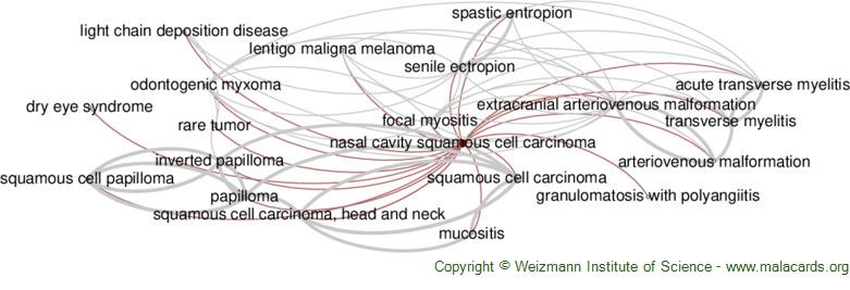 Diseases related to Nasal Cavity Squamous Cell Carcinoma