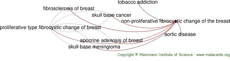 Diseases related to Non-Proliferative Fibrocystic Change of the Breast