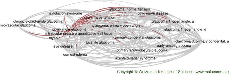 Diseases related to Open-Angle Glaucoma