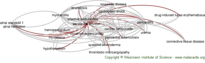 Diseases related to Pericardial Effusion