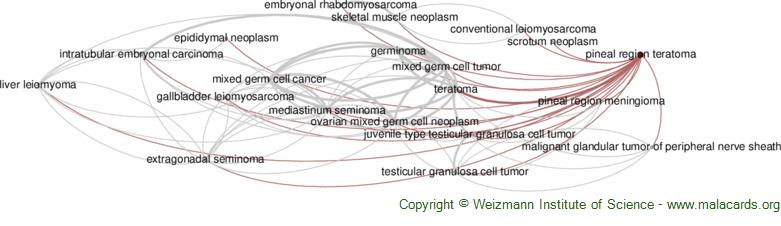 Diseases related to Pineal Region Teratoma