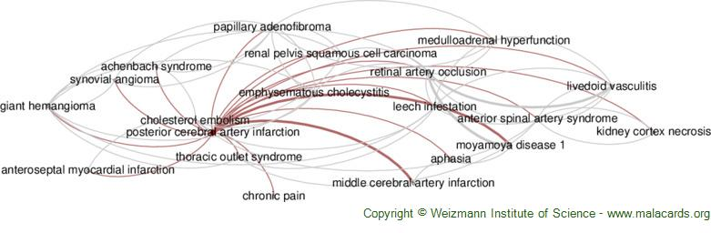 Diseases related to Posterior Cerebral Artery Infarction