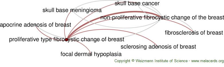 Diseases related to Proliferative Type Fibrocystic Change of Breast