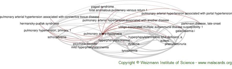 Diseases related to Pulmonary Artery Hypoplasia