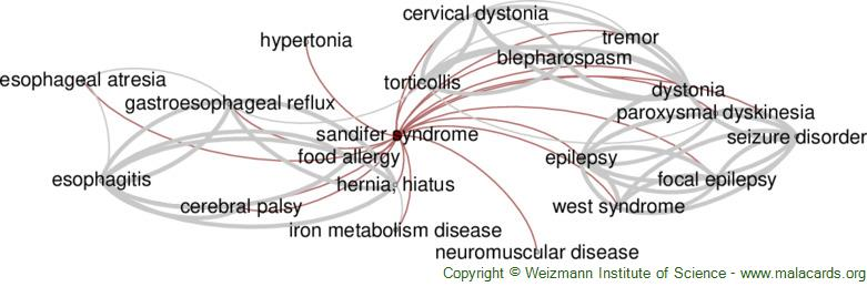 Diseases related to Sandifer Syndrome