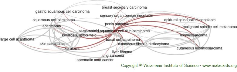 Diseases related to Sarcomatoid Squamous Cell Skin Carcinoma