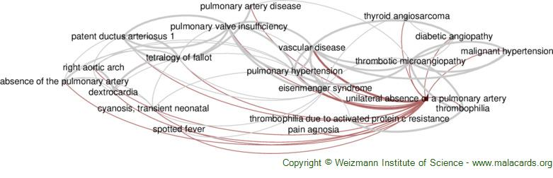 Diseases related to Unilateral Absence of a Pulmonary Artery
