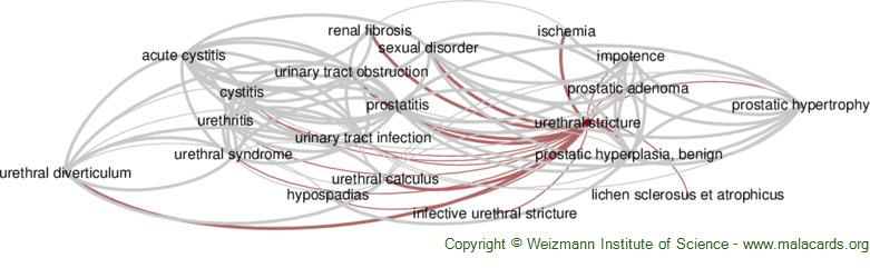 Diseases related to Urethral Stricture
