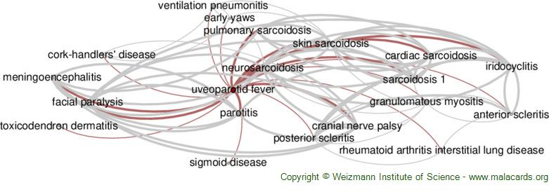Diseases related to Uveoparotid Fever