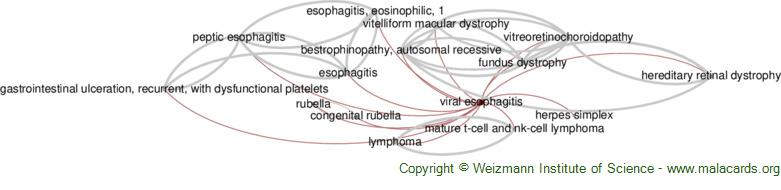 Diseases related to Viral Esophagitis